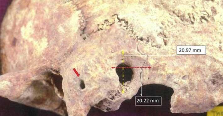 Αρχαιολογική ανακάλυψη στην Θάσο, Κρανίο με ίχνη χειρουργείου!